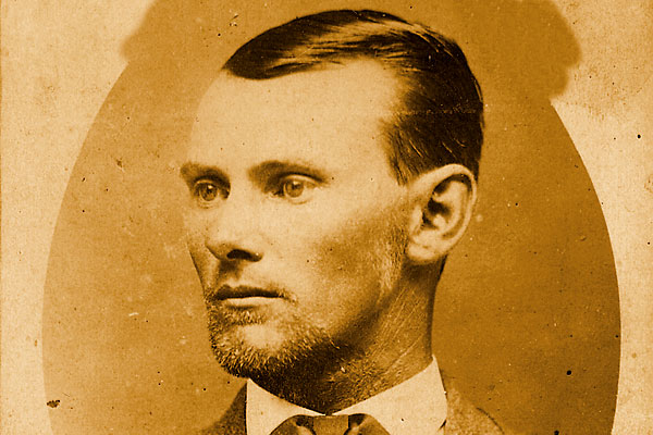 From what malady did Jesse James suffer?
